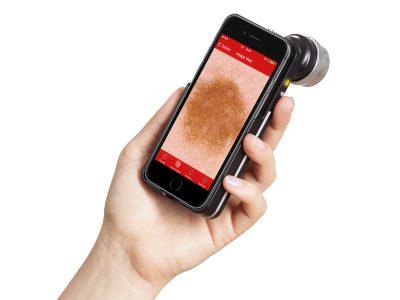Fotofinder handyscope